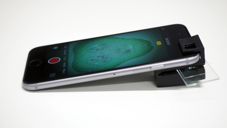 Telefonul tău se poate transforma în microscop