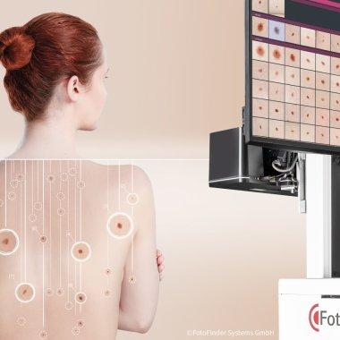 Acest AI detectează cancerul de piele și salvează vieți