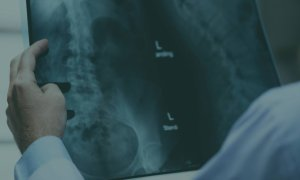 Coronavirus | Medicai, conturi gratuite pentru medici pe platforma de imagistică
