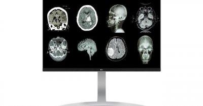 Importanța monitorului medical pentru un diagnostic precis