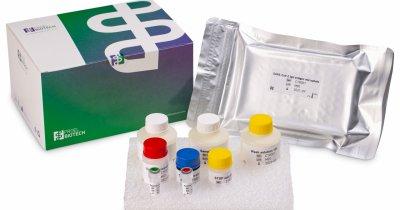 Kit pentru detecția anticorpilor SARS-CoV-2 IgG, exclusiv pentru diagnostic in vitro